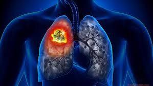 Akciğer Kanseri Hakkında Daha Fazla Bilgi
